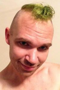Doog cut his hair into a green mohawk before his surgery.